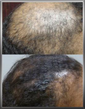 female-hair-loss-savannah-hair-restoration