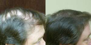 46 year old, 2,379 grafts, one year after