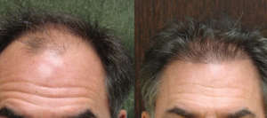 48 yr old, 750 grafts, 1 yr after