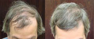 56 year old, 2,518 grafts to hairline and crown, one year after