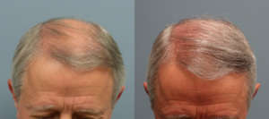 65 Year old, 2010 grafts placed on front hair line, one year after