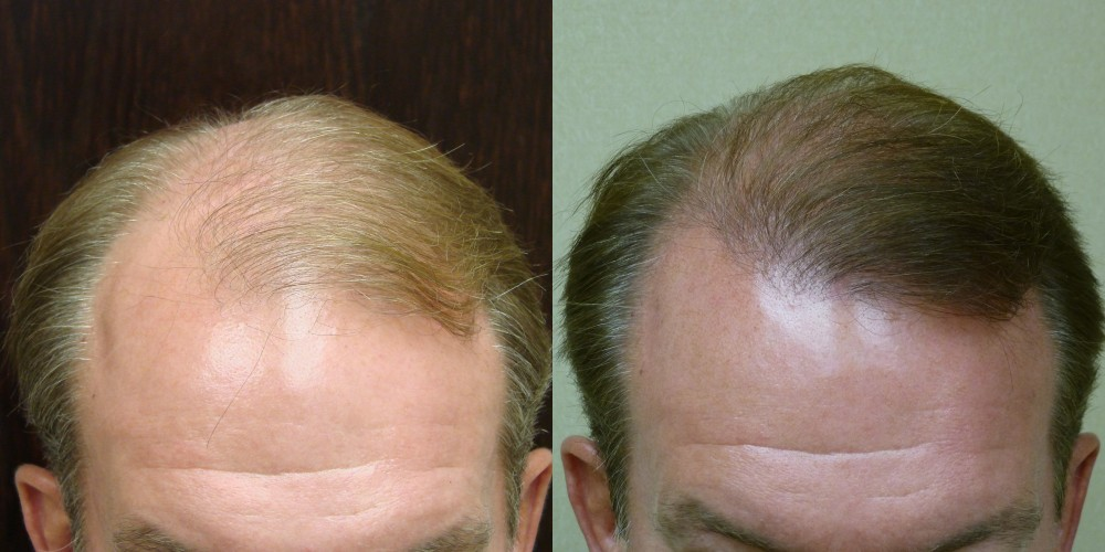 Male Hair Restoration in Savannah Georgia