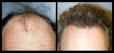 Hair Restoration Savannah