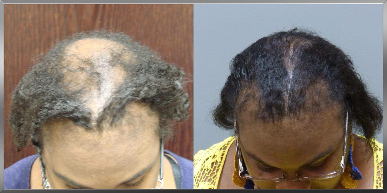 Female Hair Restoration with NeoGraft