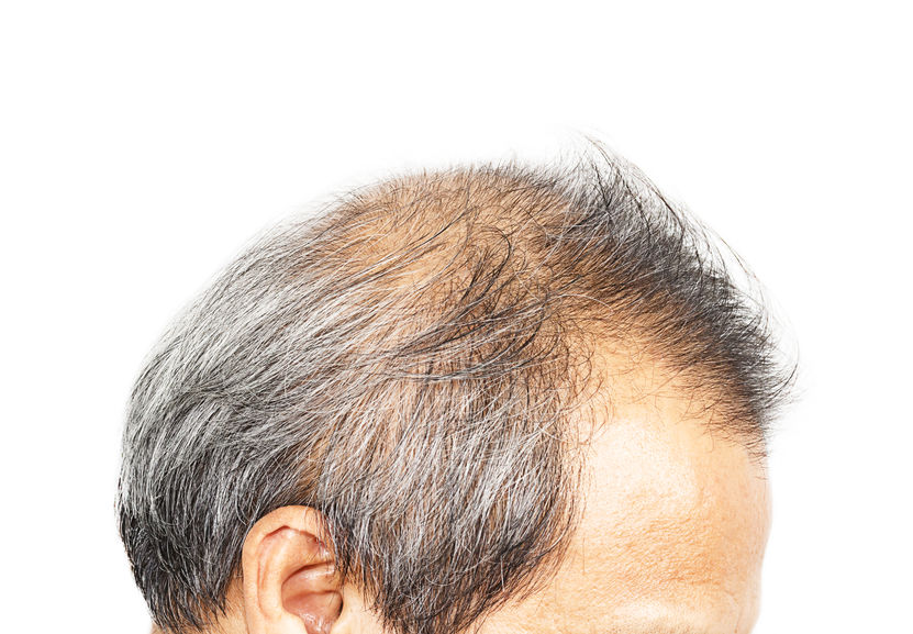 DHT and hair restoration