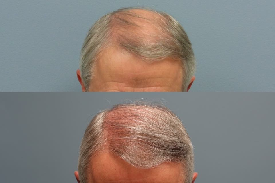 hair restoration success stories