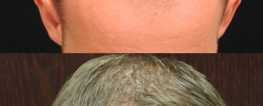 WHY NEOGRAFT HAIR TRANSPLANT?