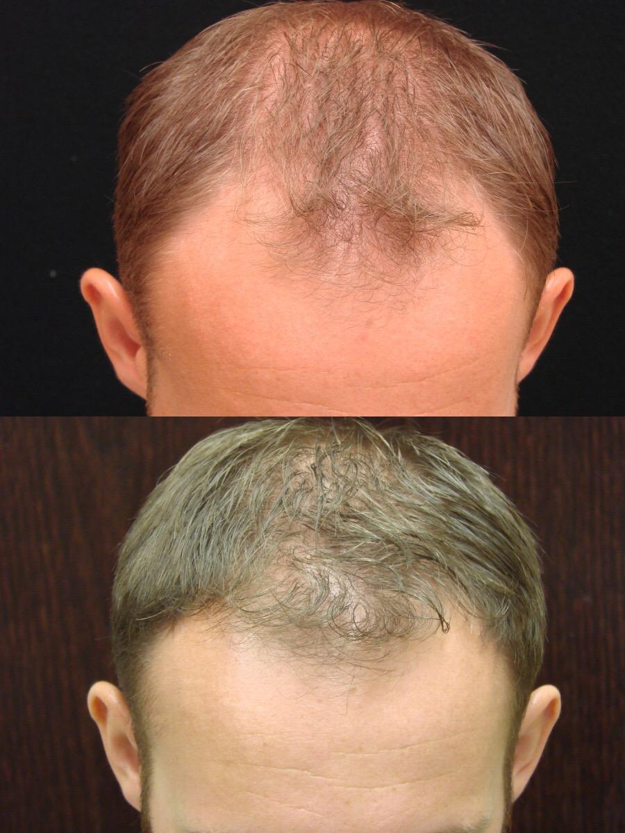 Various Hair Transplant Uses. WHY NEOGRAFT HAIR TRANSPLANT?