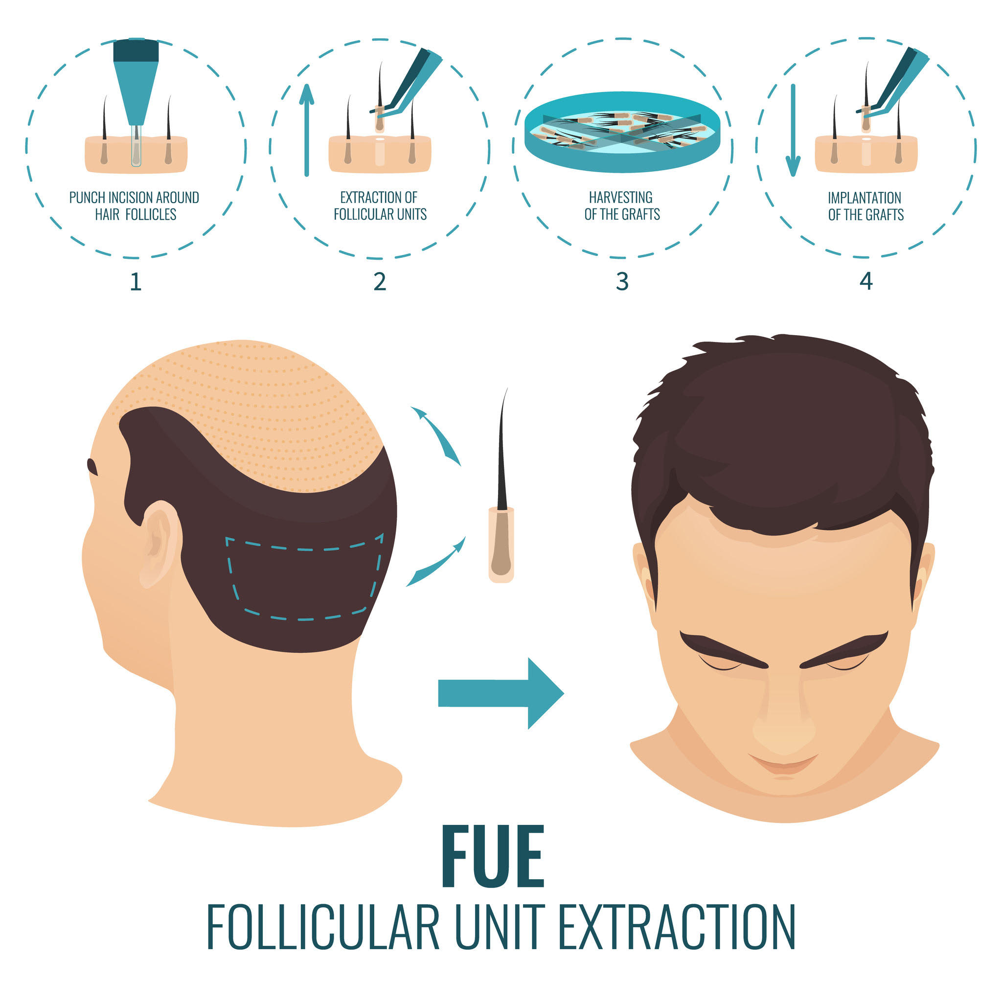 hair restoration method