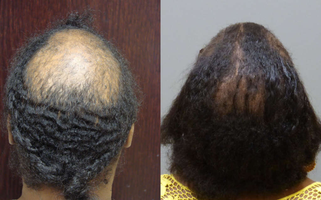 Hair Loss Treatment in women - PRP Therapy FUT, and Light Therapy for hair loss