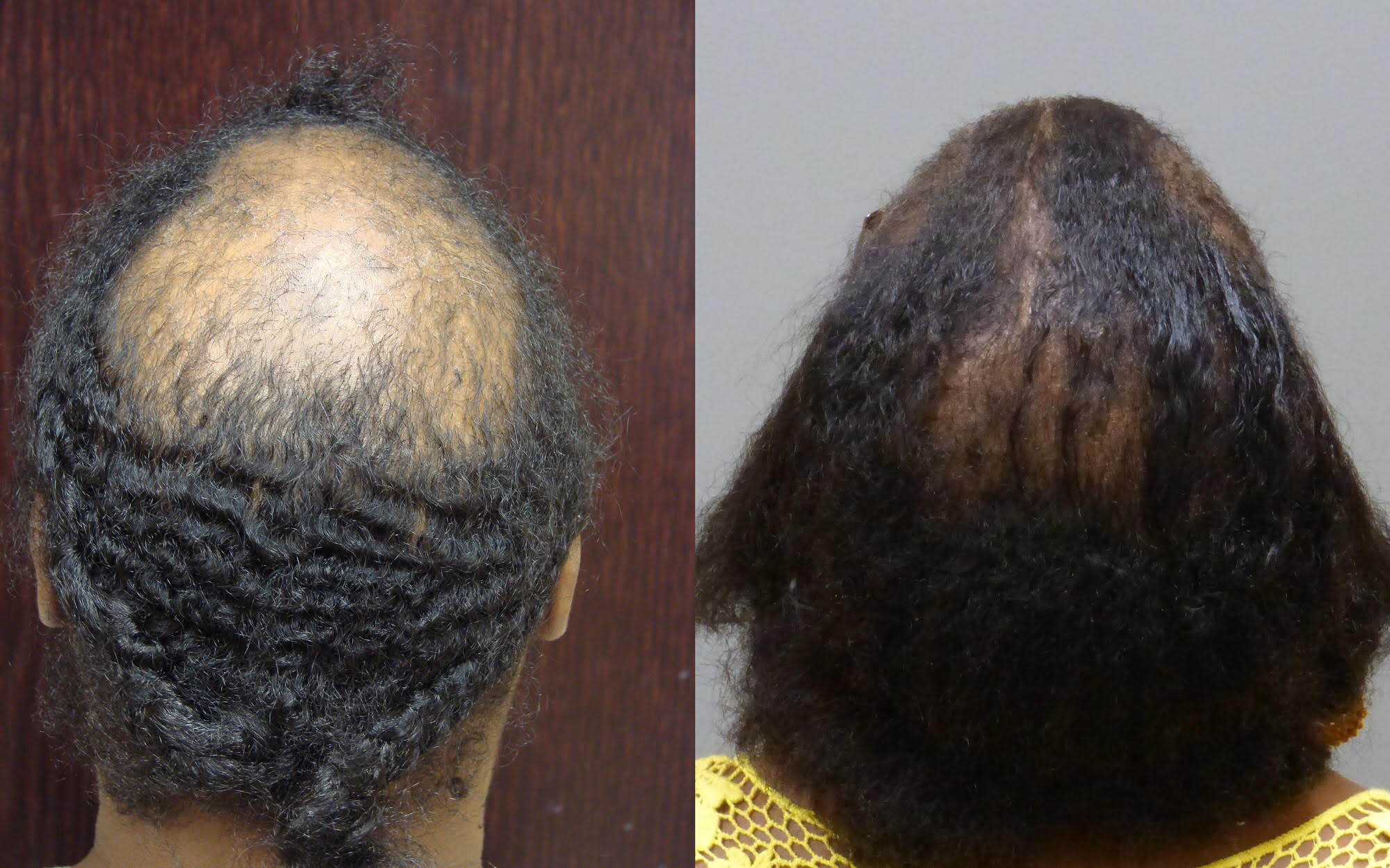 - Before and after 12-month 4050 grafts and scalp reduction.