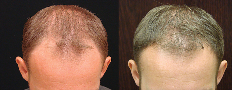 Gallery of real patients - Hair Restoration Savannah offers Hair Loss Solutions - 26 yr old, 1,050 grafts, 5 months after