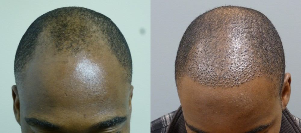 34 year old, frontal hairline, 2,000 grafts immediately after