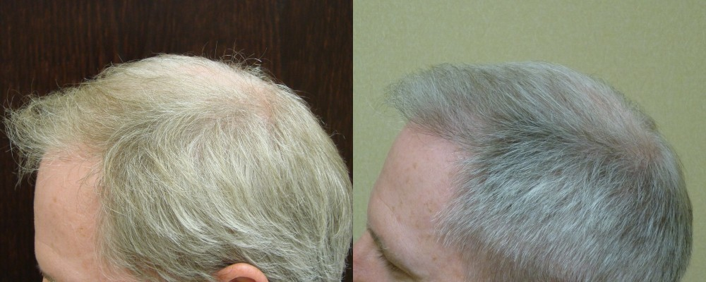 43 yr old, 1,533 grafts placed on front hair line and crown, 6 months after