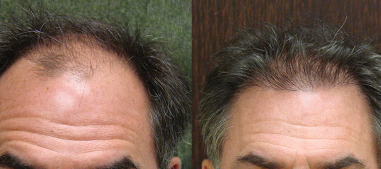 48 yr old, 750 grafts, 1 yr after
