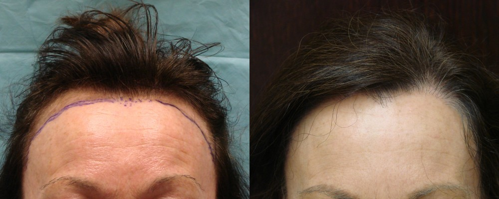 PRP Therapy for Hair Loss and Strip Method of Hair Restoration - 49 year old, 1,877 grafts to hair line, 1 yr after