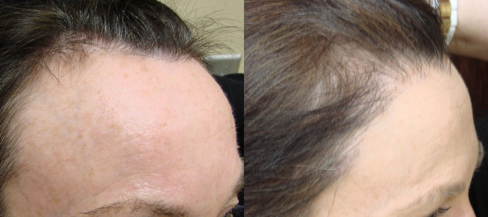 49 year old, 1,877 grafts to hair line, 1 yr after