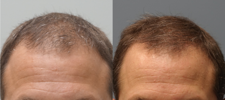 Hair Transplant Results with NeoGraft Before and After 3 months - NeoGraft 1200 grafts