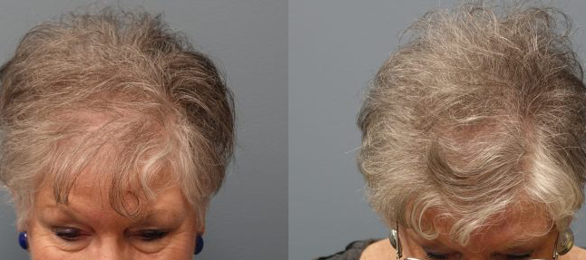 Female Hair Loss is very common especially in older women. Hair Transplant with strip excision, 69 year old, 1,500 grafts, Before and 11 months after