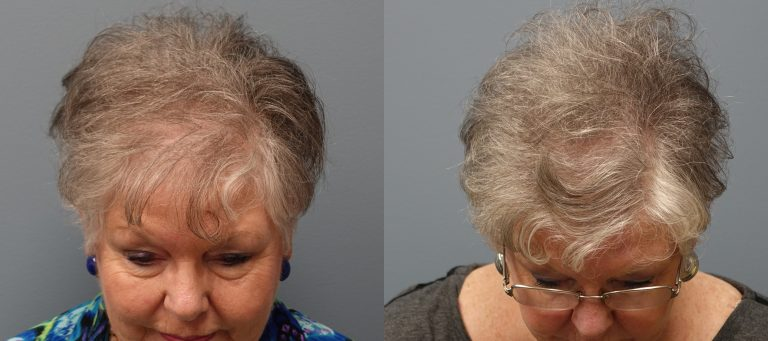 Hair Transplant 69 year old, 1,500 grafts, Before and 11 months after