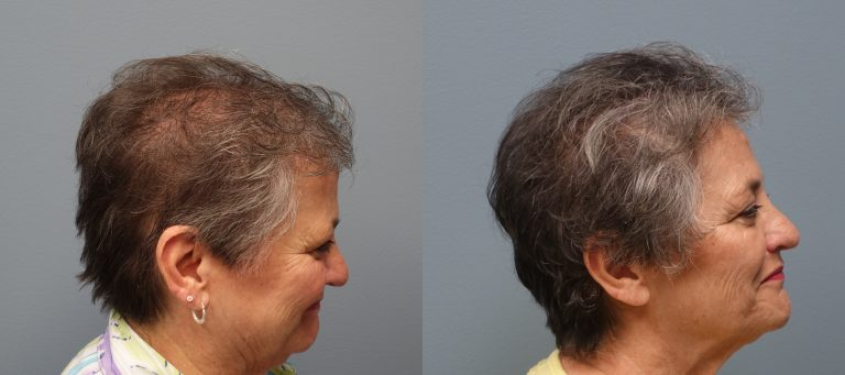 Hair Restoration Methods include the Strip Method - Hair transplant with strip excision 66 year old 1,325 Grafts Before and 11 months after