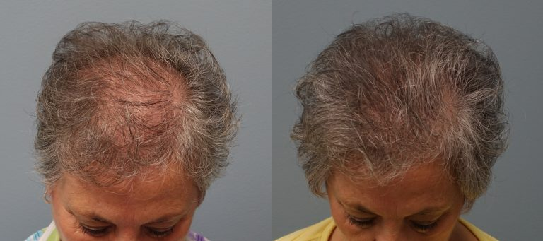 Hair transplant with strip excision 66 year old 1,325 Grafts Before and 11 months after