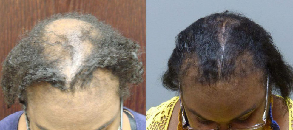 Hair Transplant Results with NeoGraft. Patient had Scalp Reduction and 4050 grafts total.