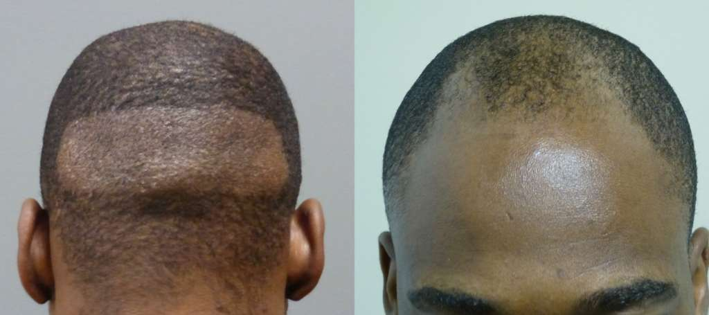 34 year old FUE 2000 grafts 1st picture shows donor site and his before 2nd shows 11 days after and 4 months after