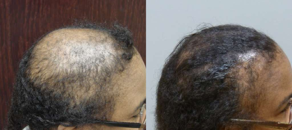 70 year old Female Before and After 12-months 4050 grafts and scalp reduction. Hair Transplants Results by Dr. E. Ronald Finger in Savannah