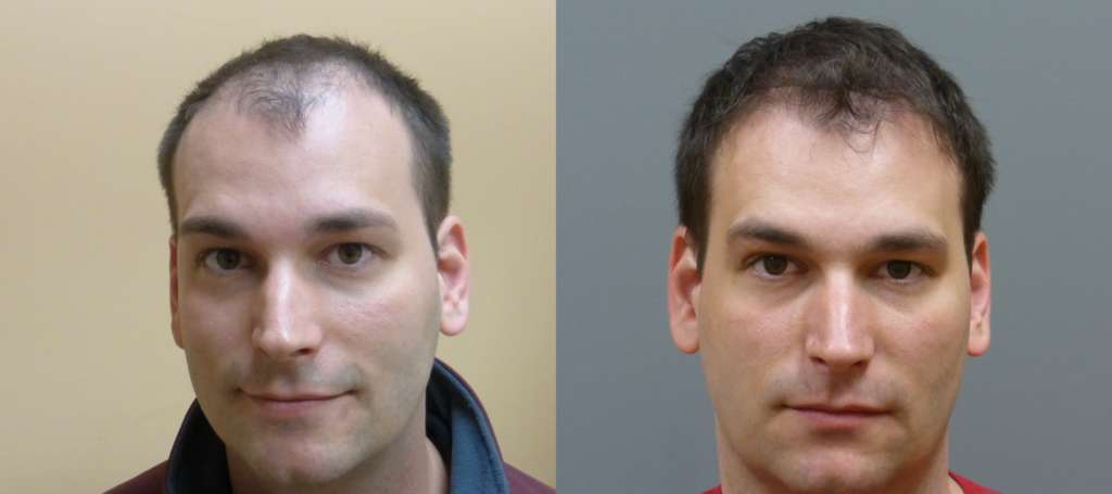 Neograft Hair Transplant Results - 2000 grafts, 32 year old before and 7 months post-op