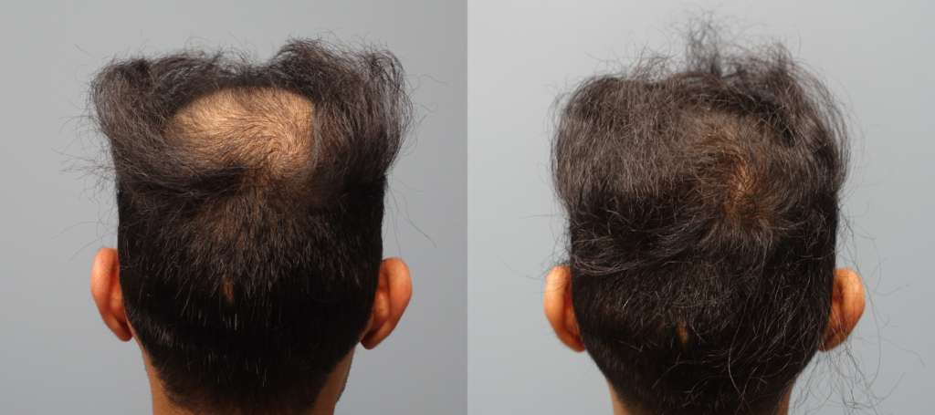 Hair Restoration Savannah 1 Neograft Provider Fue And Fut Provider Hair Restoration Savannah