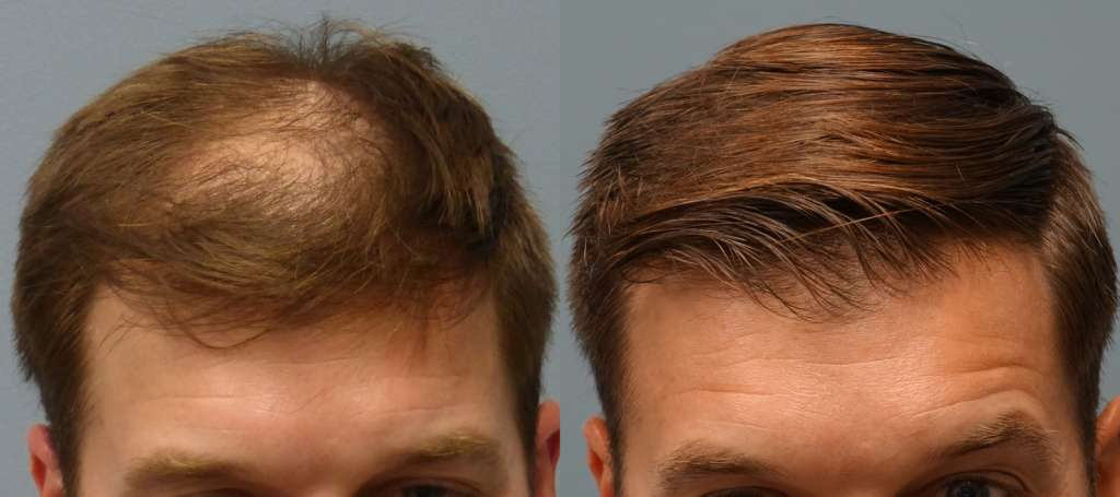 Hair Transplant Results with a two different hair restoration methods, Neograft FUE Hair Transplant and FUT Strip Method. The Gentleman on the picture received Neograft hair transplantation