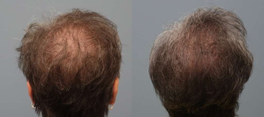 Hair Restoration Methods include the Strip Method
