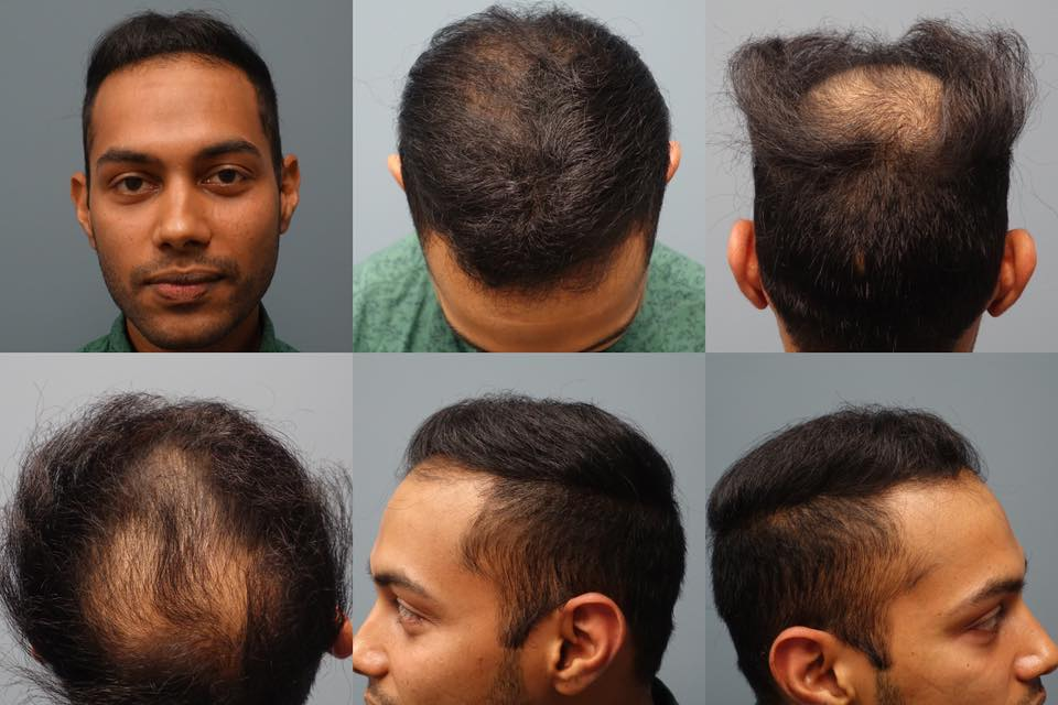 Before Neograft Hair Restoration