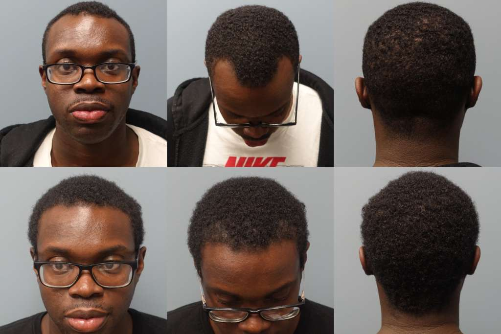African Americans can benefit from Neograft Hair Restoration - The no linear Scar Method of hair transplantation