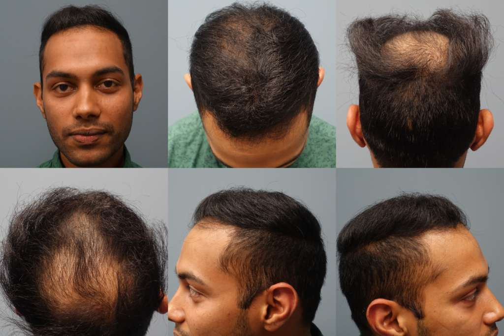 Hair transplants performed at Hair Restoration Savannah. Patient received 2500 grafts with the Neograft FUE Method. Neograft is a minimally invasive method of hair transplantation for men and women of all ethnicities. No linear scar, no general anesthesia and no scalpel or stitches.