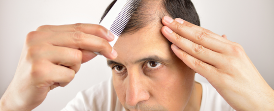Millions of Men and Women Suffer from Hair Loss!