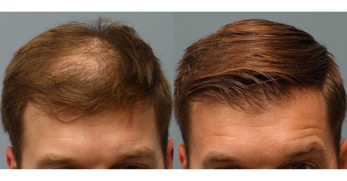 WHY NEOGRAFT HAIR TRANSPLANT_ Hair Loss Solution in Savannah Georgia by Hair Restoration Savannah by Dr Finger (5)