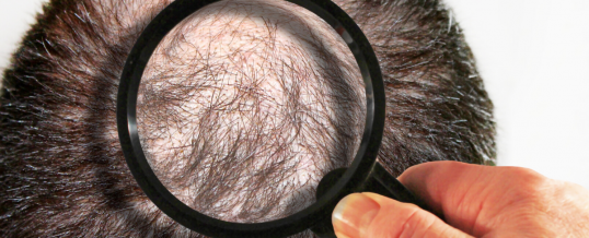 Neograft (FUE) and Strip Method (FUT) Hair Transplant Explained