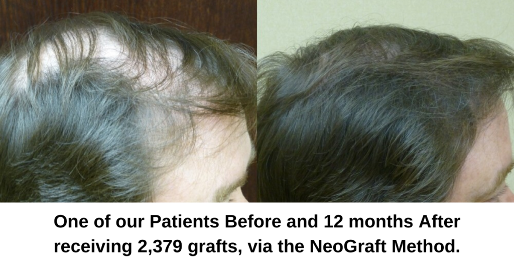 Neograft (FUE) and Strip Method (FUT) Hair Transplant Explained- Dr. Finger in Savannah Georgia- Hair Restoration Savannah (4)