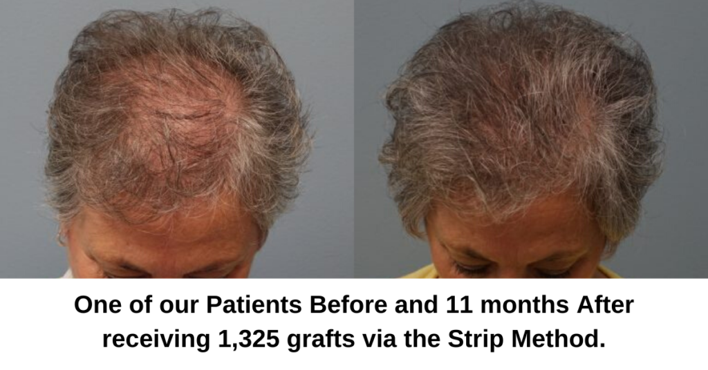 Neograft (FUE) and Strip Method (FUT) Hair Transplant Explained - Dr. Finger in Savannah Georgia- Hair Restoration Savannah (7)