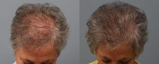 Hair Restoration For Women