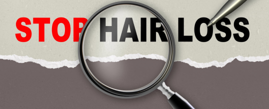 These Hair Loss Products could be better than Minoxidil (Rogaine)