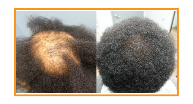 Before and after Strip Hair Transplantation for women