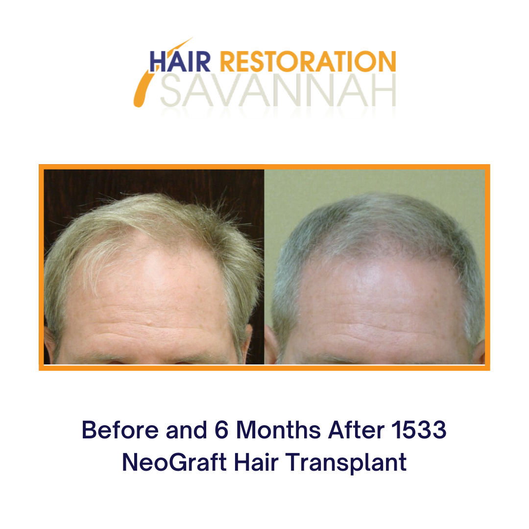 Before and after hair restoration for male hair loss