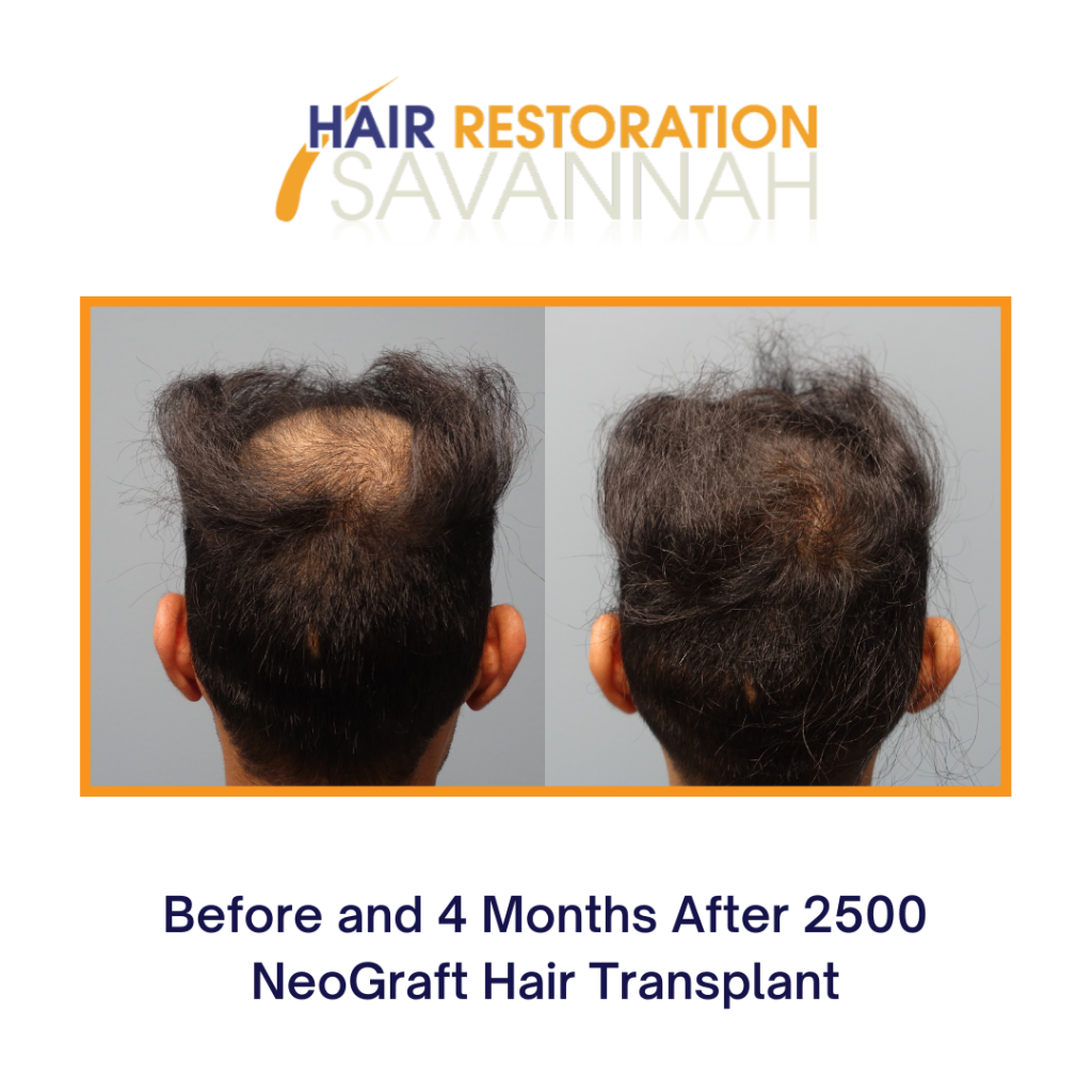 PRP Therapy and Neograft before and after results