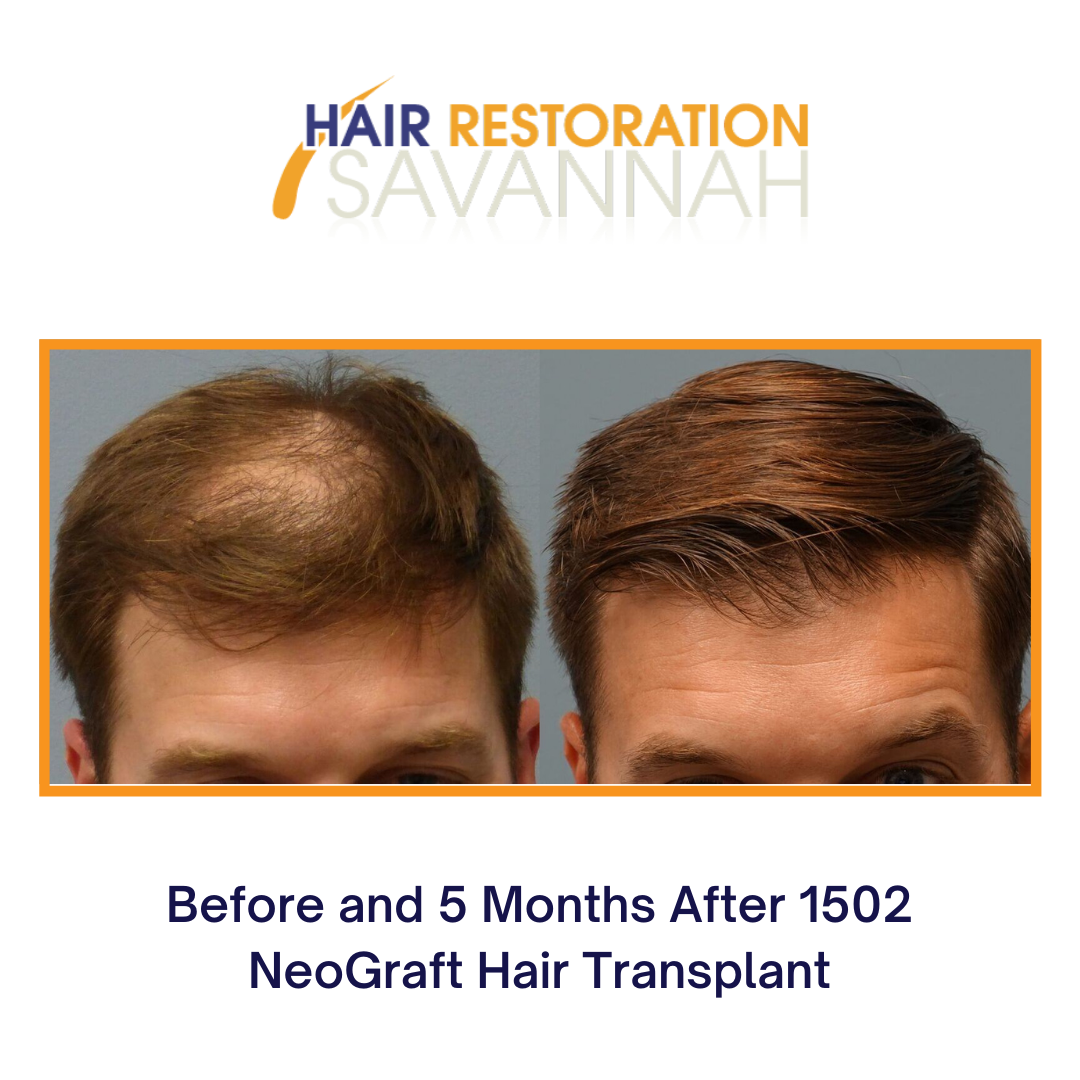 Before and After 1502 NeoGraft Hair Transplant