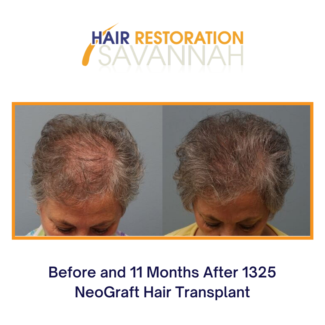Female HAIR LOSS Before and after Neograft Hair Transplant 1325 grafts