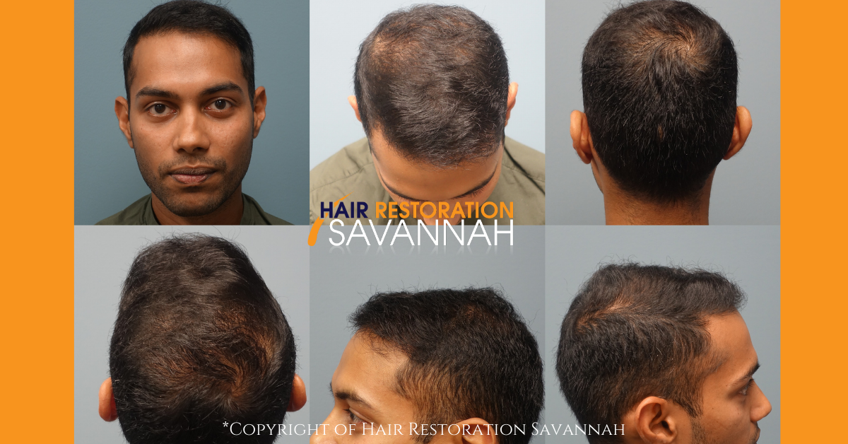 After Neograft Hair Restoration - 1 year post procedure 2500 grafts
