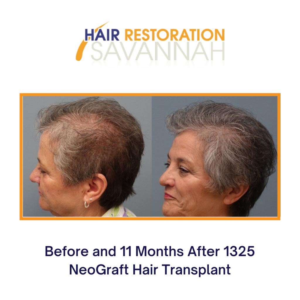 Neograft before and after - fight female hair loss with PRP and Hair Transplantation